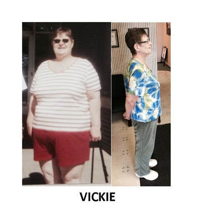 Weight Loss - Karen